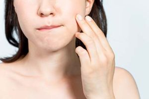 woman with swollen cheeks in need of TMJ Treatment