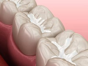 digital rendering of dental fillings and sealants